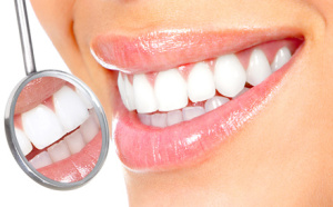 Nine things you need to know about tooth whitening