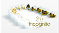incognito Invisible braces for adults in Newbury at Westbrook House Dental Surgery