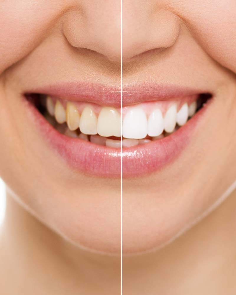 before and after teeth whitening shots side by side